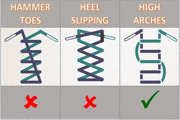 Shoe Lace For Arch Support