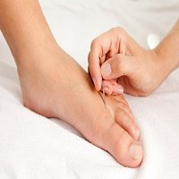 acupuncture for plantar fasciitis treatment