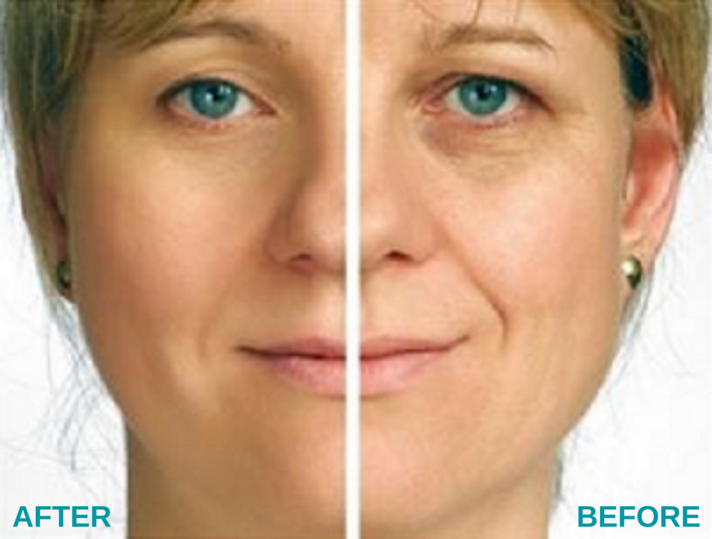 Before and After Results of Microcurrent Facial
